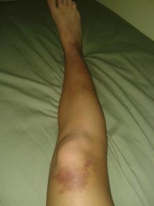 My leg, looking slightly worse for wear.